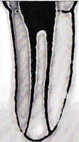 IV тип строения корневых каналов
